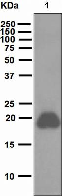 Western blot - Anti-CD42a antibody [EPR5295] (ab108304)