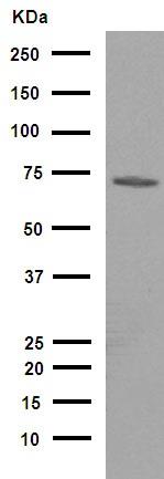 Western blot - Anti-70 kD Neurofilament Light antibody [EPR2459(2)] (ab108363)