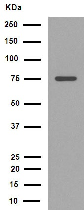Western blot - Anti-70 kD Neurofilament Light antibody [EPR2459(2)] (ab108363)