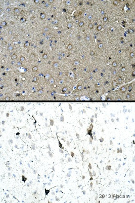 Immunohistochemistry (Formalin/PFA-fixed paraffin-embedded sections) - Anti-Tau (phospho S202) antibody [EPR2402] (ab108387)