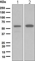 Western blot - Anti-GRK1 antibody [EPR2039(2)] (ab108502)