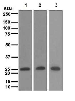 Western blot - Anti-MYL4 antibody [EPR5338] (ab108513)