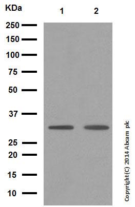 Western blot - Anti-RAB27A antibody [EPR3021] (ab108983)
