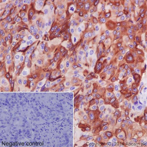 Immunohistochemistry (Formalin/PFA-fixed paraffin-embedded sections) - Anti-IRF7 antibody [EPR4718] (ab109255)
