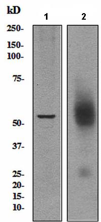 Western blot - Anti-Somatostatin Receptor 5 antibody [UMB4] (ab109495)