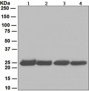 Western blot - Anti-Proteasome 20S alpha 2 antibody [EPR5454] (ab109502)
