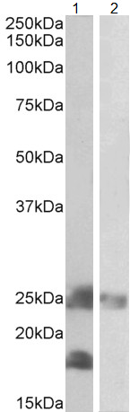 Western blot - Anti-DCTN3 antibody (ab109551)