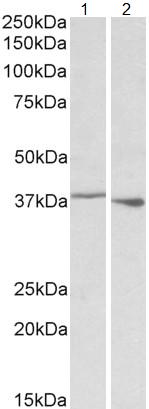Western blot - Anti-PCBP1 antibody (ab109578)