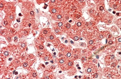 Immunohistochemistry (Formalin/PFA-fixed paraffin-embedded sections) - Anti-ALDH6A1 antibody (ab109582)