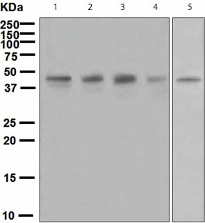 Western blot - Anti-HIF Prolyl Hydroxylases antibody [EPR3664(2)] (ab109734)