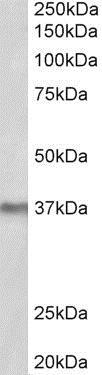 Western blot - Anti-POLDIP2 antibody (ab109805)