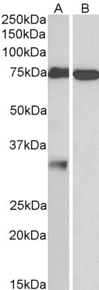 Western blot - Anti-Neuronal membrane glycoprotein M6-a antibody (ab109997)