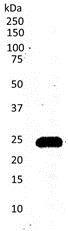 Western blot - Anti-CD3 antibody [CD3-12] (ab11089)