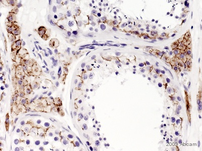Immunohistochemistry (Formalin/PFA-fixed paraffin-embedded sections) - Anti-Connexin 43 / GJA1 antibody (ab11370)