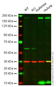 Western blot - Anti-Angiotensin Converting Enzyme 1 antibody [3C5] (ab11737)