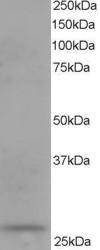Western blot - Anti-DCXR antibody (ab11800)