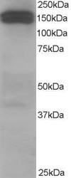 Western blot - Anti-DCTN1 antibody (ab11806)