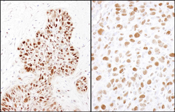 Immunohistochemistry (Formalin/PFA-fixed paraffin-embedded sections) - Anti-MCM2 (phospho S32) antibody (ab11897)