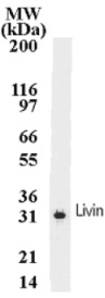 Western blot - Anti-Livin antibody [88C570] (ab11983)