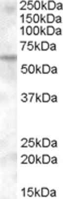 Western blot - Anti-KPNA6 antibody (ab110016)