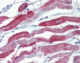 Immunohistochemistry (Formalin/PFA-fixed paraffin-embedded sections) - Anti-Junctophilin-2 antibody (ab110056)