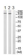 Western blot - Anti-ARHGEF11 antibody (ab110059)