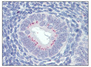 Immunohistochemistry (Formalin/PFA-fixed paraffin-embedded sections) - Anti-SFRP1 antibody (ab110113)