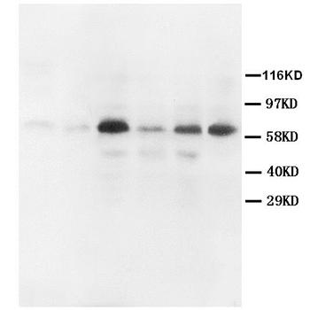 Western blot - Anti-MMP2 antibody (ab110186)