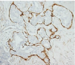 Immunohistochemistry (Formalin/PFA-fixed paraffin-embedded sections) - Anti-MMP2 antibody (ab110186)