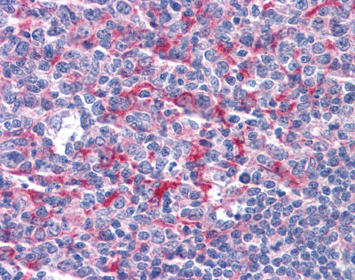 Immunohistochemistry (Formalin/PFA-fixed paraffin-embedded sections) - Anti-GABPB2 antibody (ab110197)