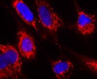 Immunocytochemistry/ Immunofluorescence - Anti-FH antibody [8F12BB5] (ab110286)