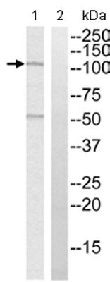 Western blot - Anti-MYBPC1 antibody (ab110363)