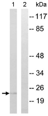 Western blot - Anti-RHOG antibody (ab110365)