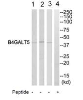 Western blot - Anti-B4GALT5 antibody (ab110398)