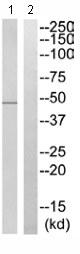 Western blot - Anti-SYT13 antibody (ab110520)
