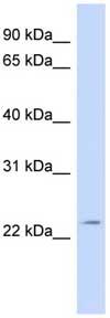 Western blot - Anti-FGF11 antibody (ab110545)