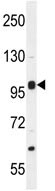 Western blot - Anti-NBPF8 antibody (ab110552)