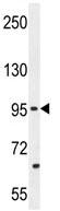 Western blot - Anti-PCDH20 antibody (ab110556)