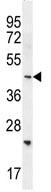 Western blot - Anti-SH2D4B antibody (ab110580)
