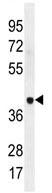 Western blot - Anti-LRRC38 antibody (ab110583)
