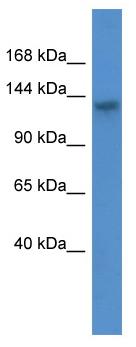 Western blot - Anti-ATP11C antibody (ab110710)