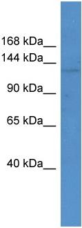 Western blot - Anti-ABCC12 antibody (ab110733)