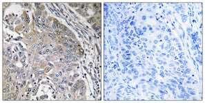 Immunohistochemistry (Formalin/PFA-fixed paraffin-embedded sections) - Anti-SPINK6 antibody (ab110830)
