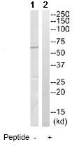 Western blot - Anti-CCT6A antibody (ab110905)