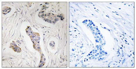 Immunohistochemistry (Formalin/PFA-fixed paraffin-embedded sections) - Anti-KIAA0100 antibody (ab110911)
