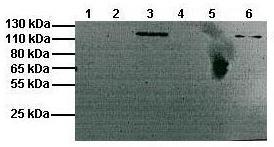 Western blot - Anti-CLCN1 antibody (ab110985)