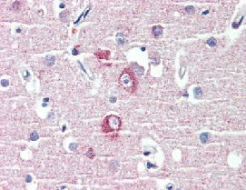 Immunohistochemistry (Formalin/PFA-fixed paraffin-embedded sections) - Anti-DLGAP1 antibody (ab111058)