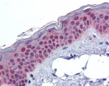 Immunohistochemistry (Formalin/PFA-fixed paraffin-embedded sections) - Anti-XPD antibody (ab111066)