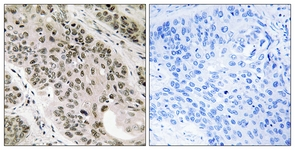Immunohistochemistry (Formalin/PFA-fixed paraffin-embedded sections) - Anti-TNNI3K antibody (ab111140)