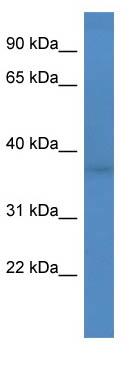 Western blot - Anti-FANK1 antibody (ab111141)